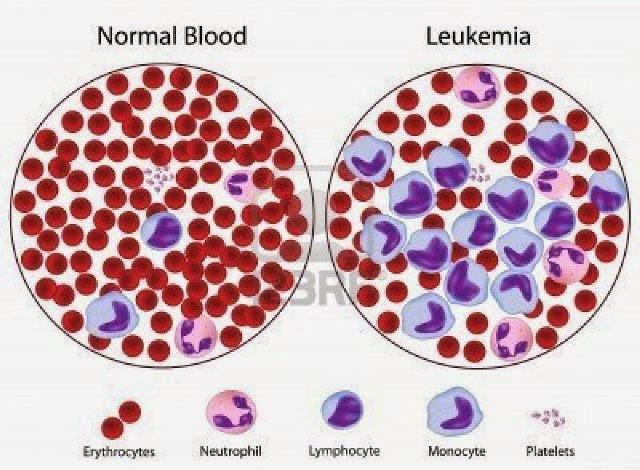 Global Terapi Leukemia Market