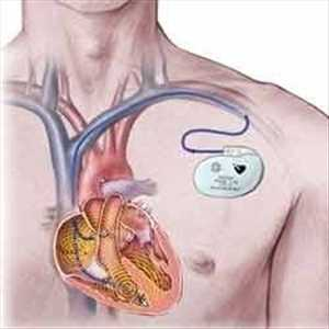 Pasar Alat Pacu Jantung Global