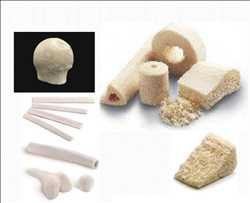 Pasar Allograft Tulang Mesin Tulang Belakang Global