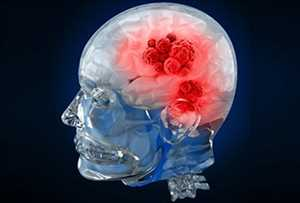 Global Diagnostik Kanker Otak Tren Pasar
