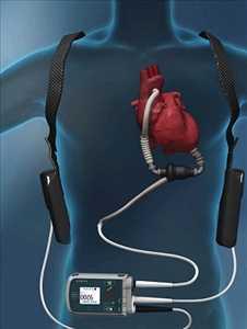 Global Alat Perawatan Gagal Jantung Kongestif (CHF) Tingkat Pertumbuhan Pasar