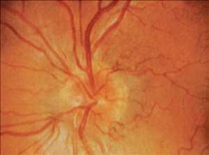 Obat Neuropati Optik Herediter Leber Pasar