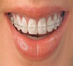 Global Bahan Habis Pakai Ortodontik Lingkup Pasar Masa Depan