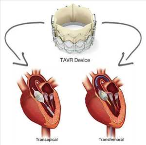 Global Penggantian Implantasi Katup Aorta Transkateter (TAVR TAVI) Peluang Pasar